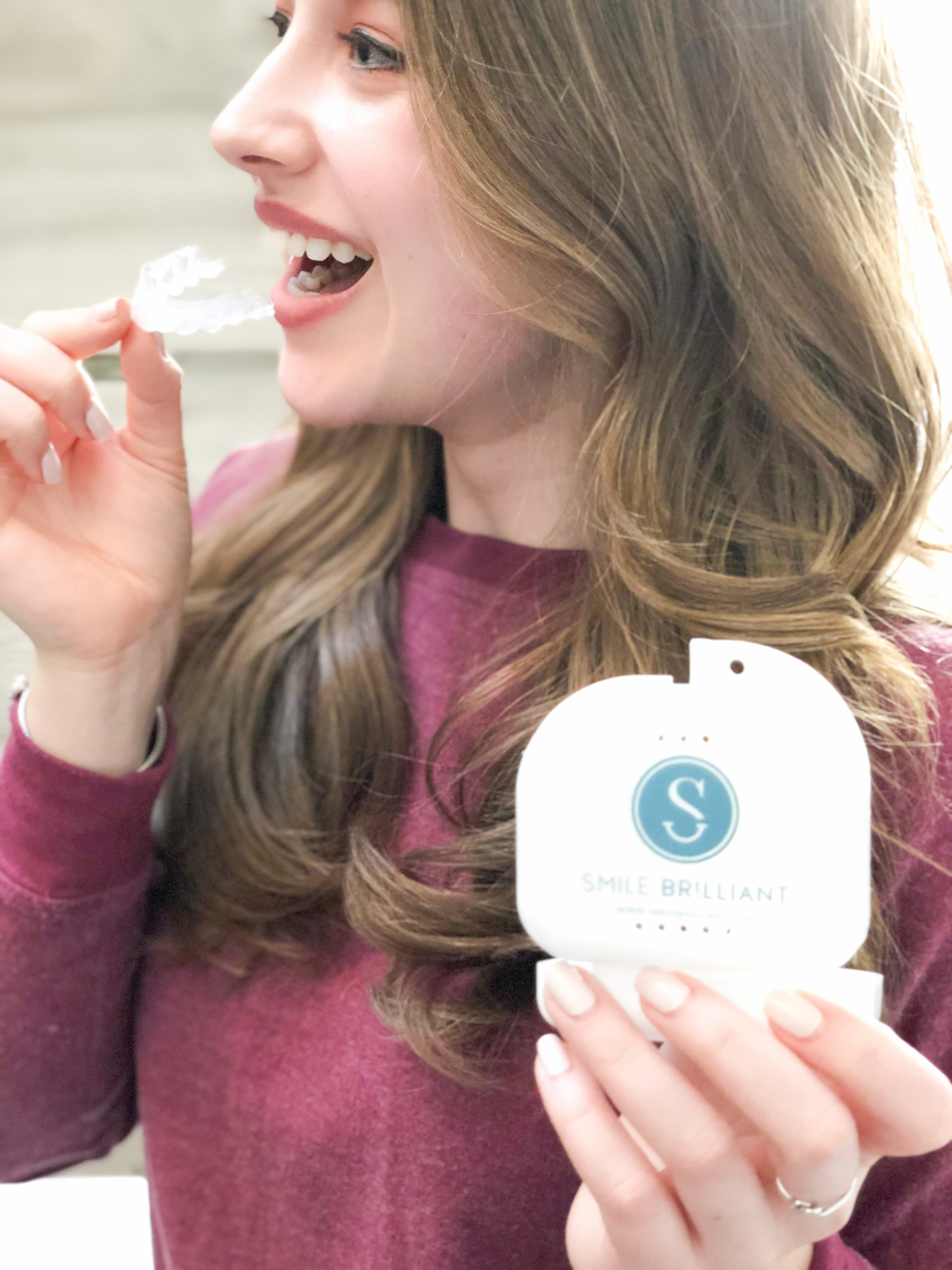 How I Got Instagram-Worthy White Teeth This Spring With Smile Brilliant